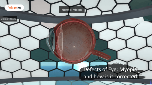 Virtual tour 2 Defects of Eye Myopia and how is it corrected